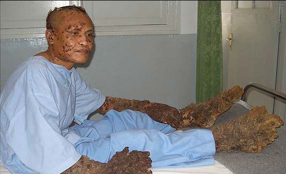 tree-man-surgery