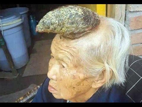 Φύτρωσε κέρατο στο κεφάλι γιαγιάς με αποτέλεσμα να μοιάζει με «μονόκερο» (Video,Photos)
